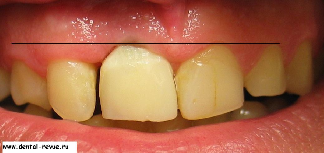 Как сделать зубную коронку 800