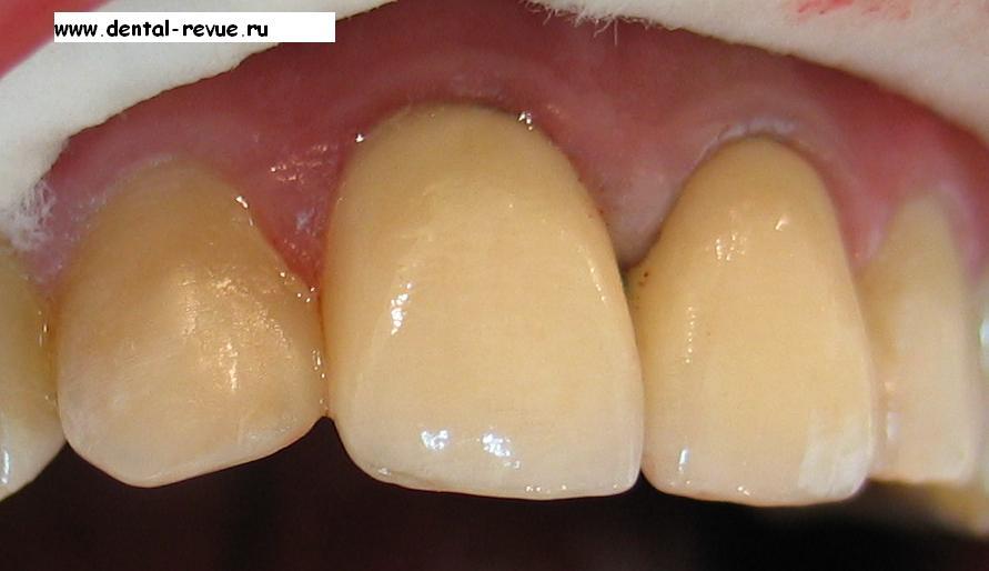 препарирование зубов под виниры