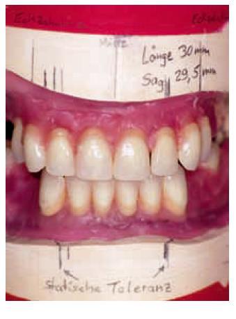 К чему снятся передние зубы с кровью