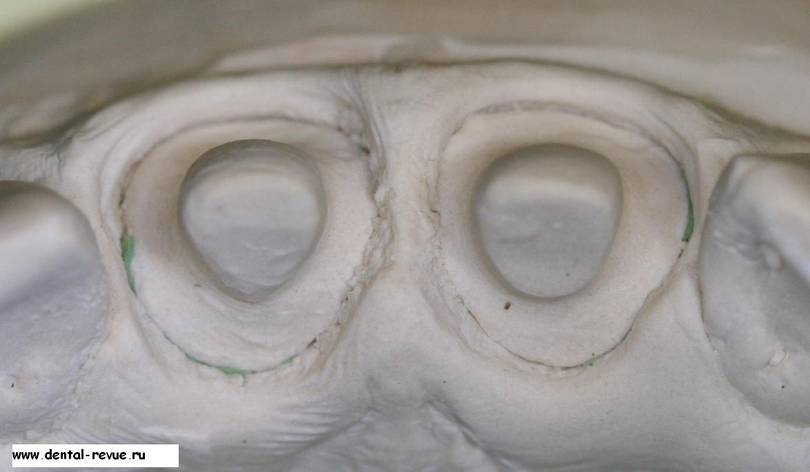 бугорок коронки зуба фото