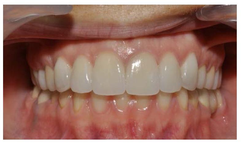 Протезирование зубов металлокерамика цвета