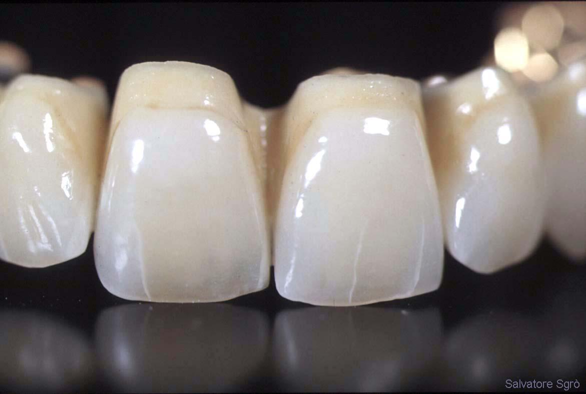 виниры на зубы в витебске цены