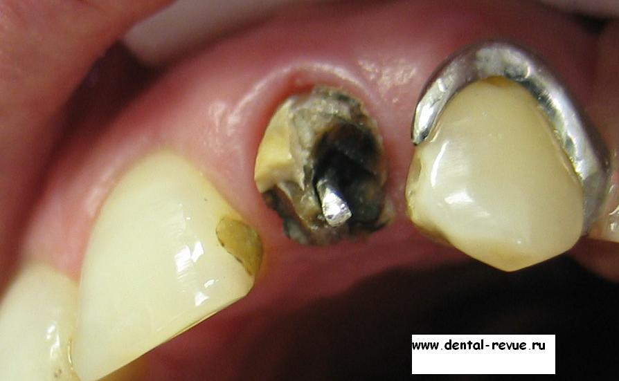 Способы отбеливания зубов с помощью соды