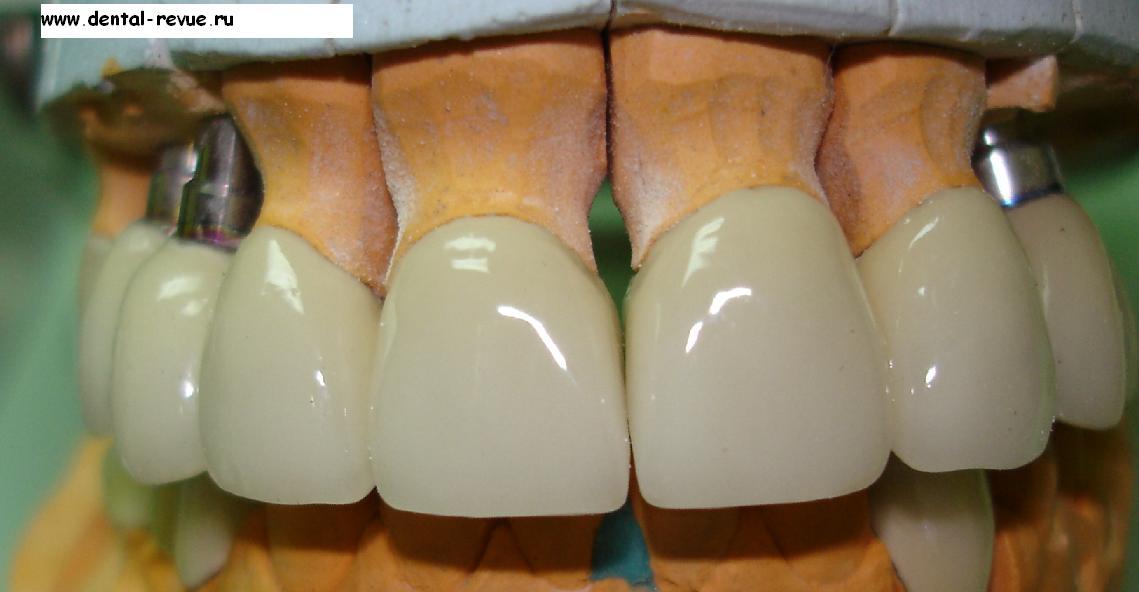 Металлопластиковые коронки на зубы