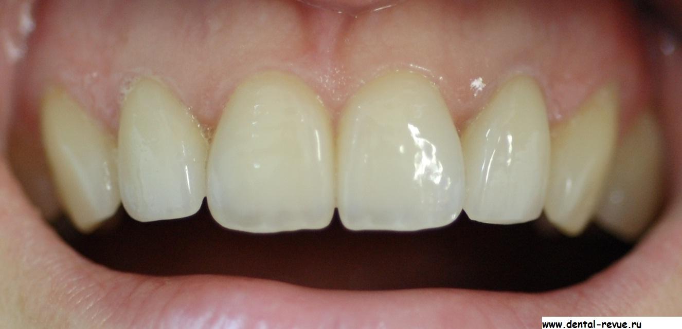 виниры на передние 6 зубов