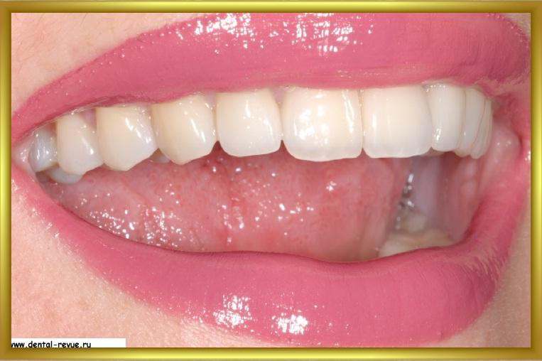 виниры на передние зубы отзывы