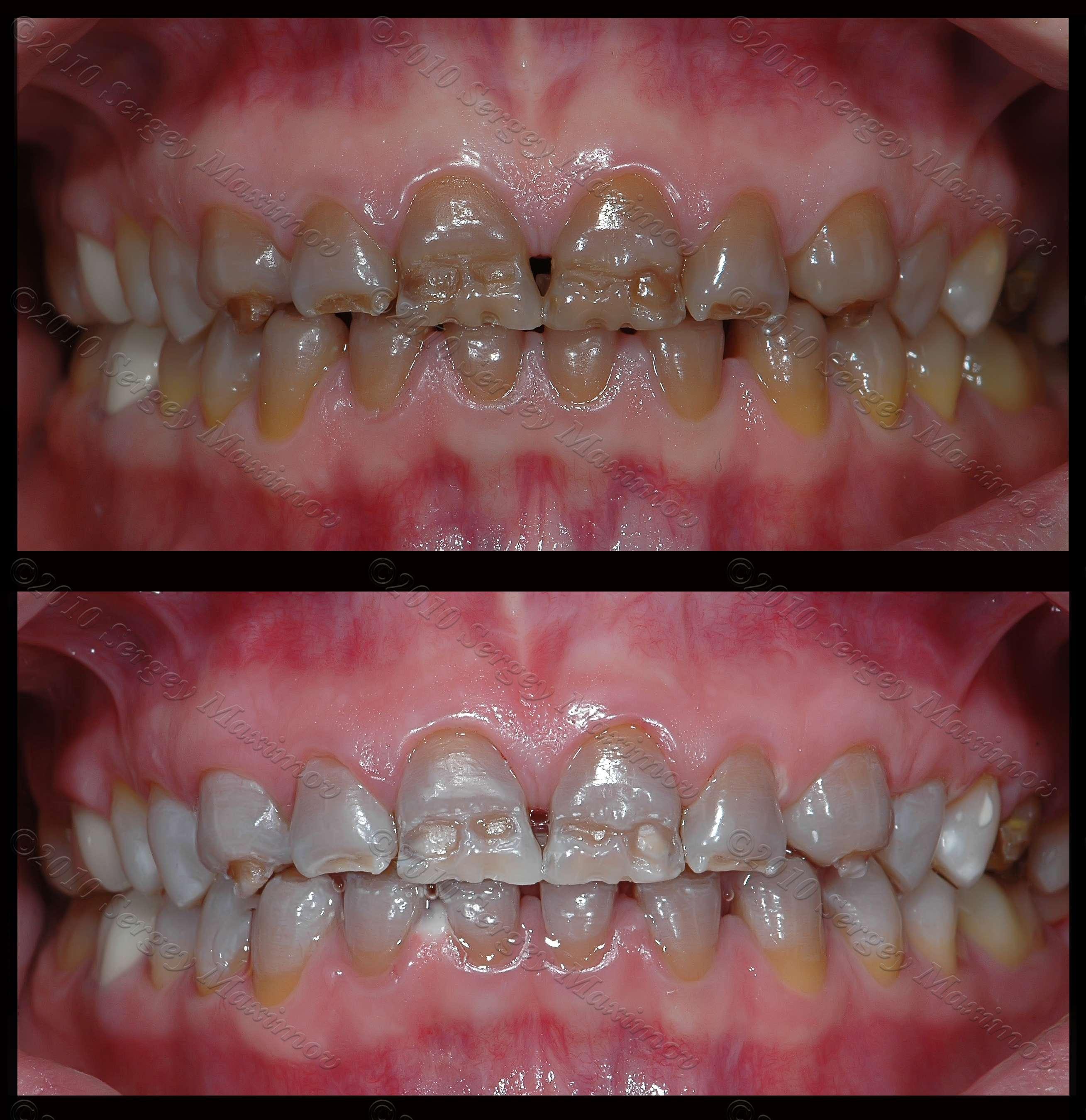 Виниловое покрытие зубов что это