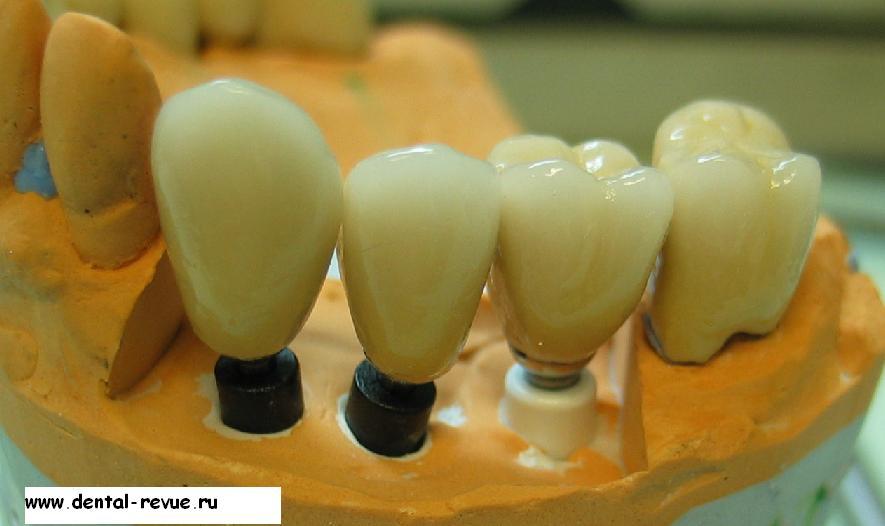 Уход за металлокерамическими несъемными зубами