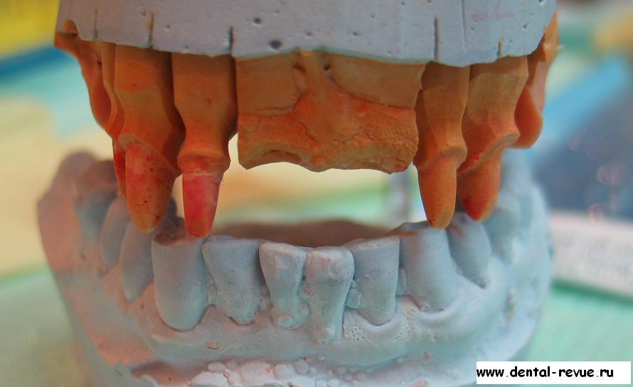 Гипсовые зубы это симптом