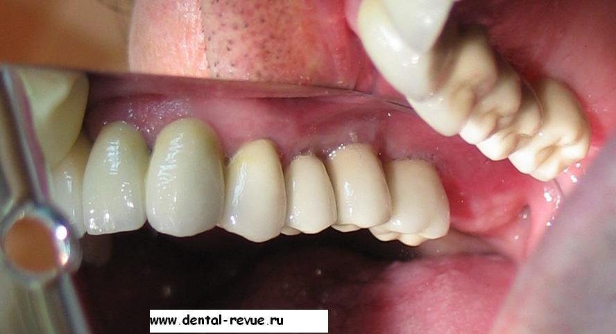 Лечение зубов своими руками 75