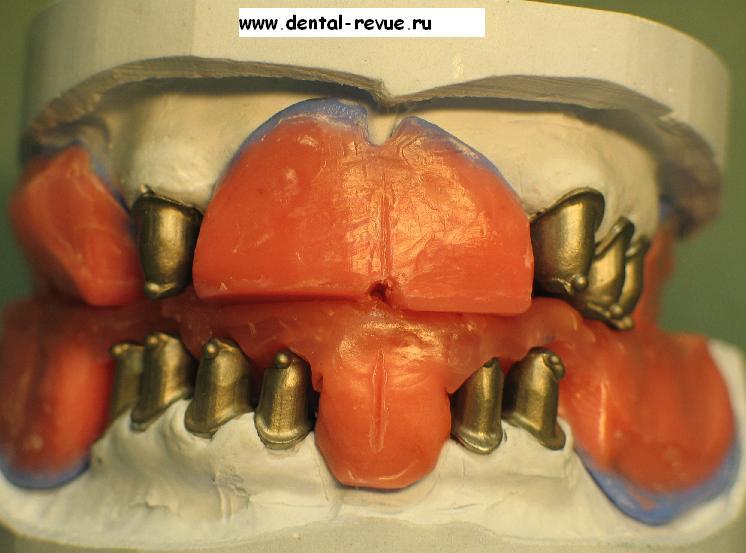 Восковой шаблон при полном отсутствии зубов