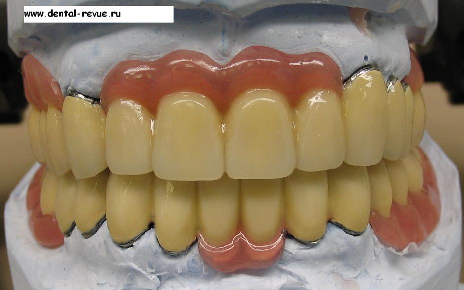 Коронка для зуба в домашних условиях 423