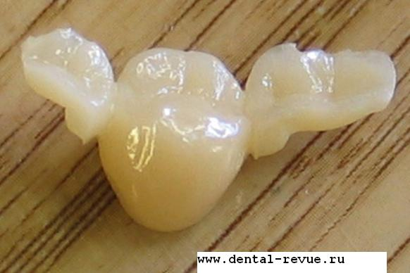 http://www.dental-revue.ru/Article/Photogallery/Images/Rus/rus25.JPG