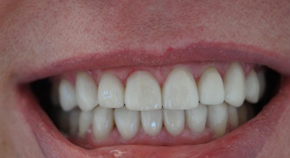 накладные зубы американские