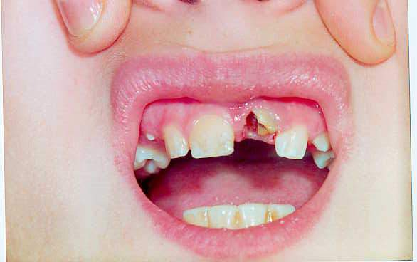Травмы зубов - ушиб зуба, вывих зуба